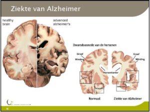 2019_2109 Dag van de alzheimer doorsnede hersenen