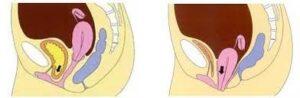 Tekening dwarsdoorsnede vrouwenlichaam waarop een verzakking te zien is